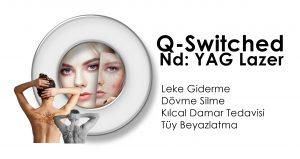 Q-Switched Nd Yag lazer izmir dovme silme leke tedavisi
